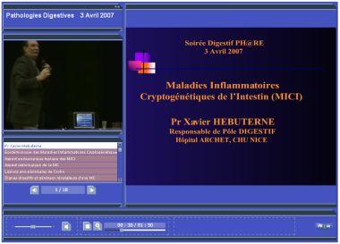 Speechi 3.0 avec vidéo